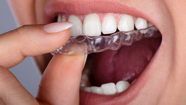 American Dental Association voices concerns around do-it-yourself aligners