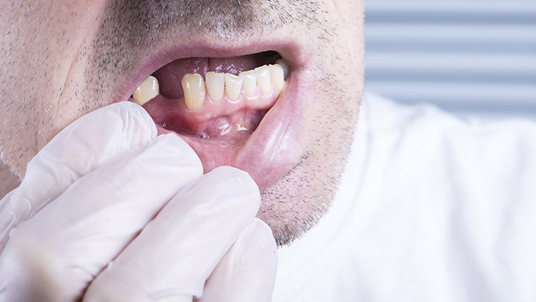 FDI releases new guidelines on treating partially dentate patients