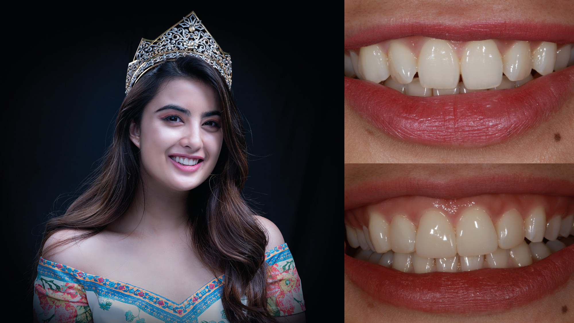 Celebrities' Smile Makeup—the MiCD way
