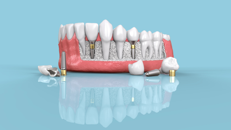 Dentsply Sirona announces comprehensive restage of its implant business